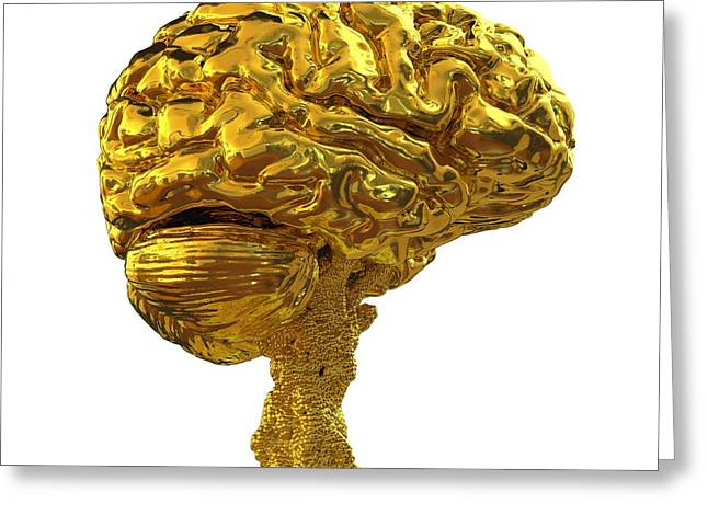 Brain Made Of Gold Greeting Card