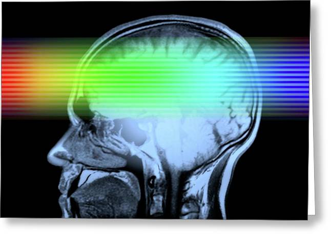 Brain Mri Scan Greeting Card