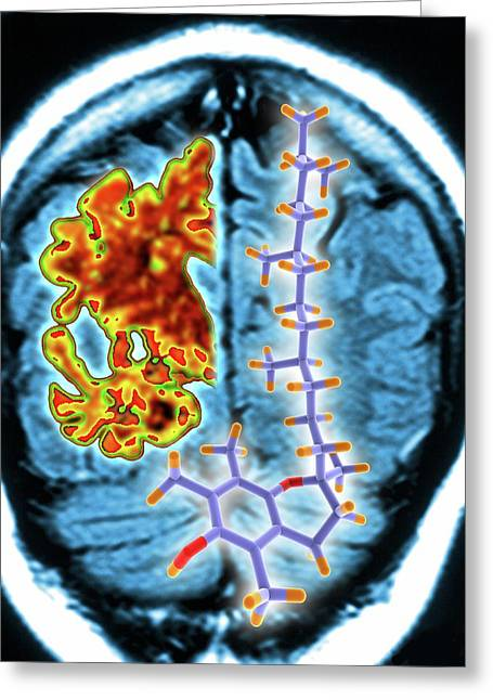 Brain Mri Scan And Vitamin E Molecule Greeting Card