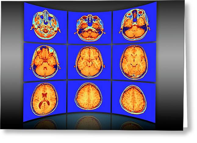 Brain Mri Scans Display Wall Greeting Card by Alfred Pasieka