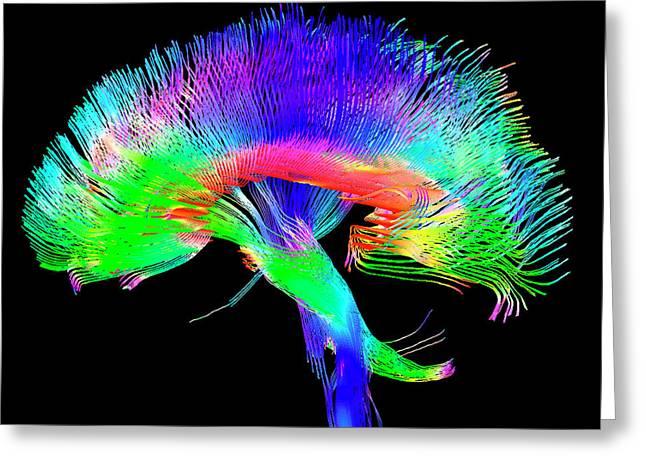 Brain Pathways Greeting Card