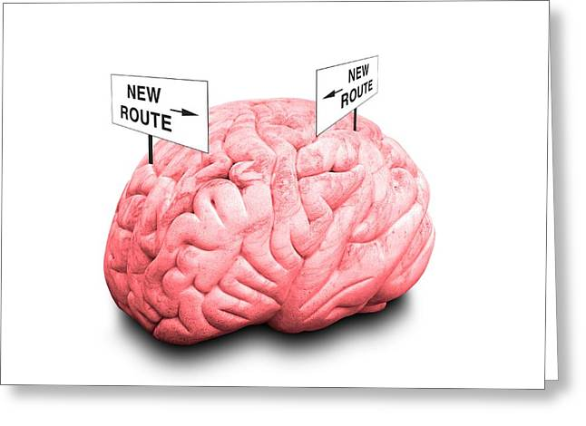 Brain Plasticity Greeting Card by Victor De Schwanberg/science Photo Library