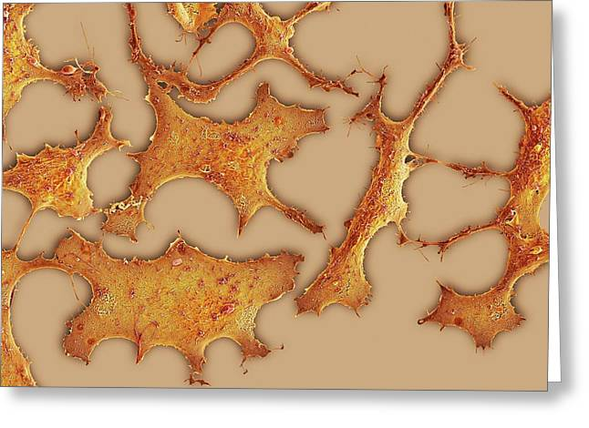 Breast Cancer Cells Greeting Card by Science Photo Library