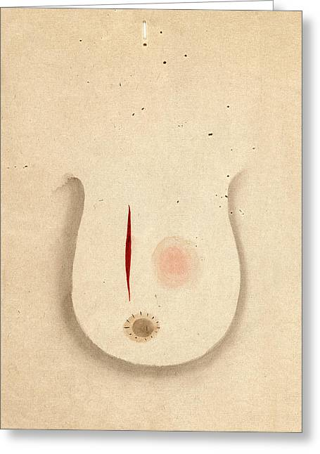 Breast Cancer Surgery Greeting Card by National Library Of Medicine
