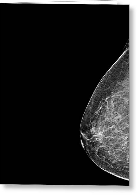 Breast Mammography. Greeting Card by Photostock-israel