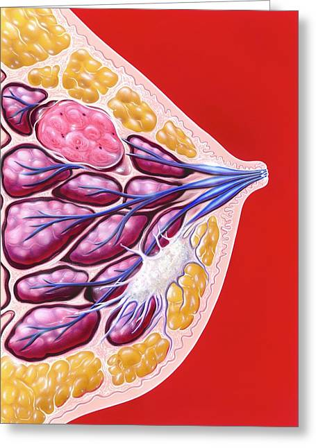 Breast Tumour And Cancer Greeting Card by John Bavosi
