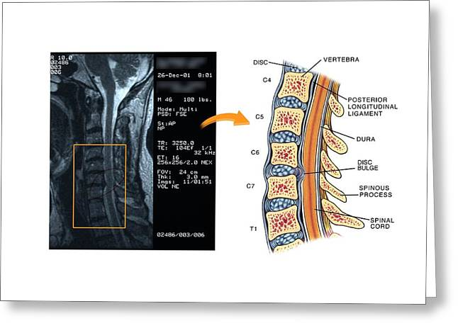 Bulging Disc In The Cervical Spine Greeting Card