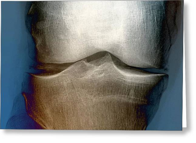 Calcification In The Knee Greeting Card by Zephyr