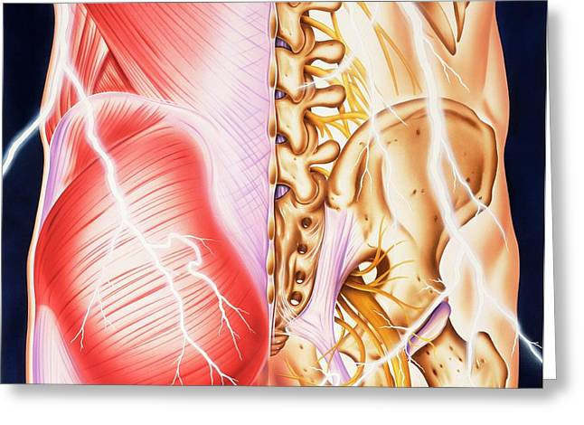 Causes Of Backache And Pain Greeting Card by John Bavosi