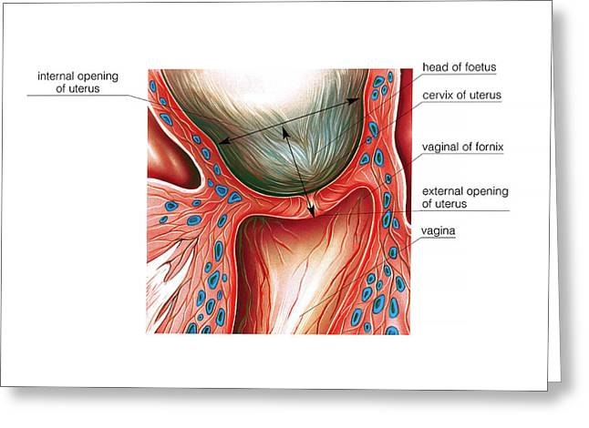 Cervix In Pregnancy Greeting Card by Asklepios Medical Atlas