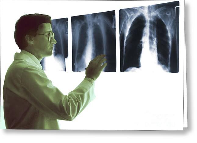 Chest X-rays Greeting Card by Dennis Potokar