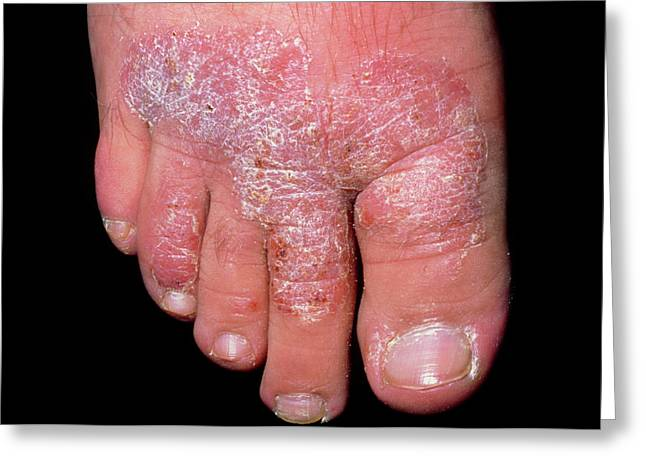 Chronic Plaque Psoriasis On The Foot Greeting Card