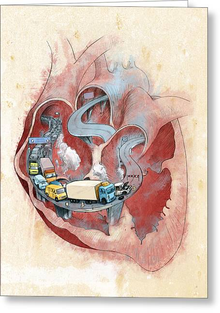 Clogged Heart Greeting Card by Fanatic Studio / Science Photo Library