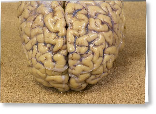 Close-up Of A Human Brain Greeting Card
