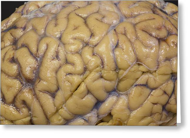 Close-up Of Human Brain Greeting Card