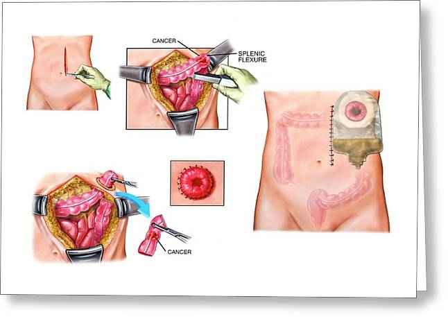 Colon Cancer Surgery And Colostomy Greeting Card