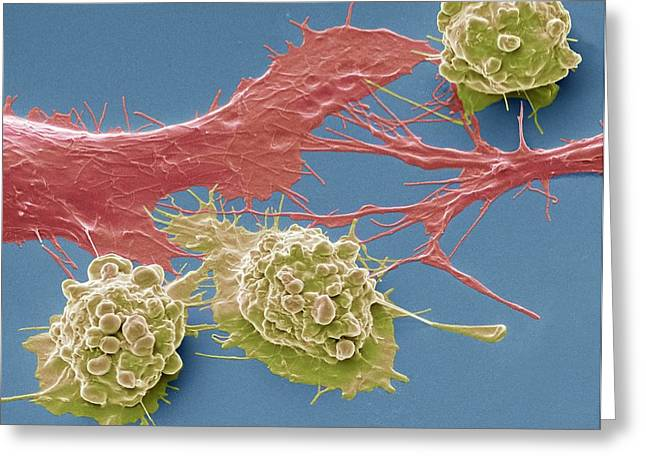 Colorectal Cancer Cells Greeting Card
