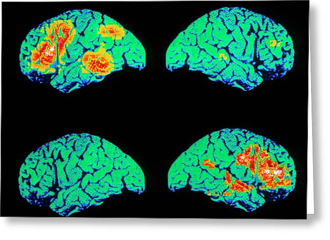 Colour Pet Scan Of Language Areas Of The Brain Greeting Card