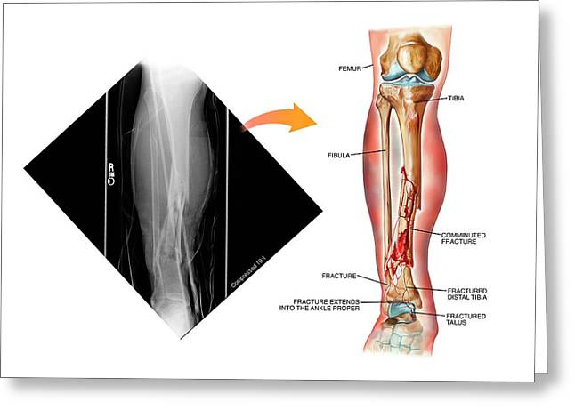 Comminuted Fracture Of The Tibia Greeting Card by John T. Alesi