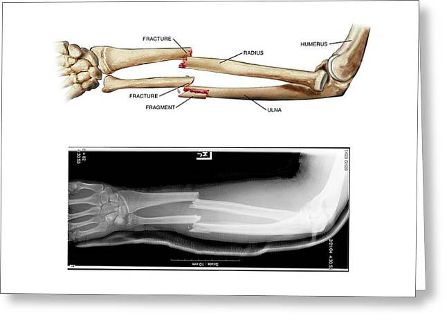 Comminuted Fractures Of Arm Bones Greeting Card by John T. Alesi
