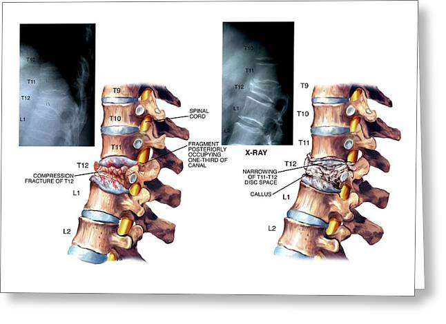 Compression Fracture Of Thoracic Vertebra Greeting Card by John T. Alesi