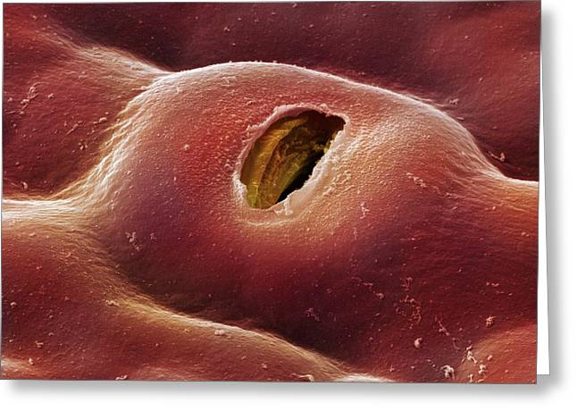 Copper Beech Leaf Stoma (fagus Sylvatica) Greeting Card