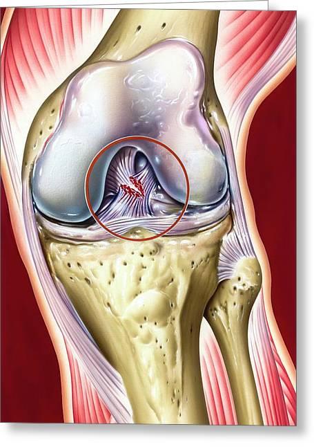 Cruciate Ligament Knee Injury Greeting Card by John Bavosi