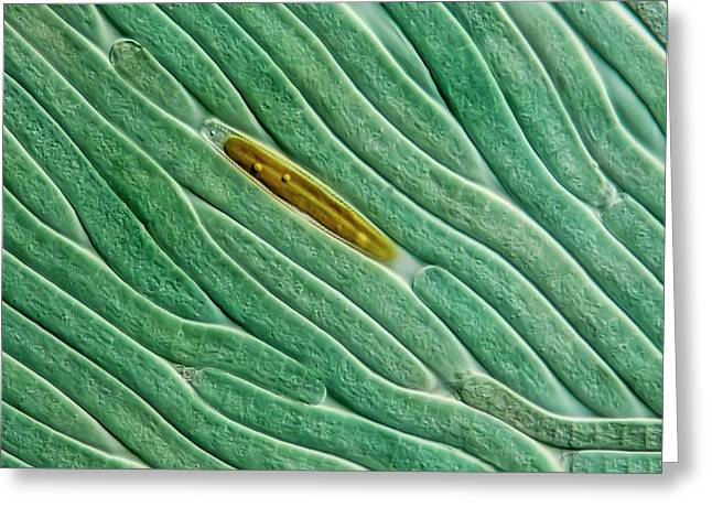 Cyanobacteria And Diatom Greeting Card by Gerd Guenther
