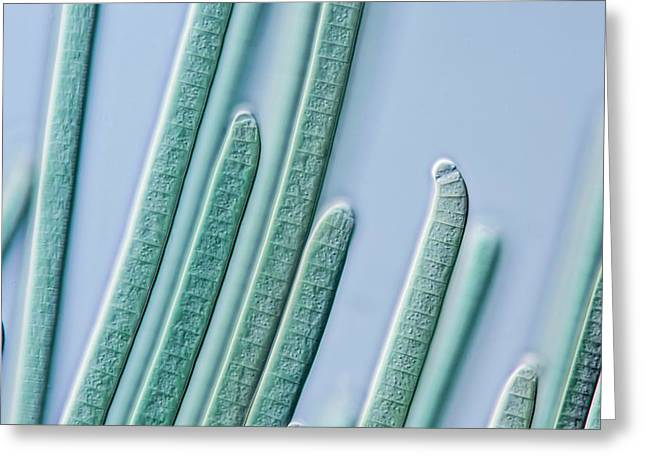 Cyanobacteria Filaments Greeting Card by Gerd Guenther