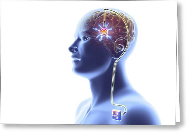 Deep Brain Stimulation Greeting Card by Alfred Pasieka