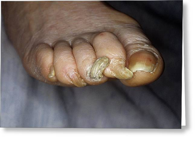 Deformed Toenails Greeting Card by Mike Devlin/science Photo Library
