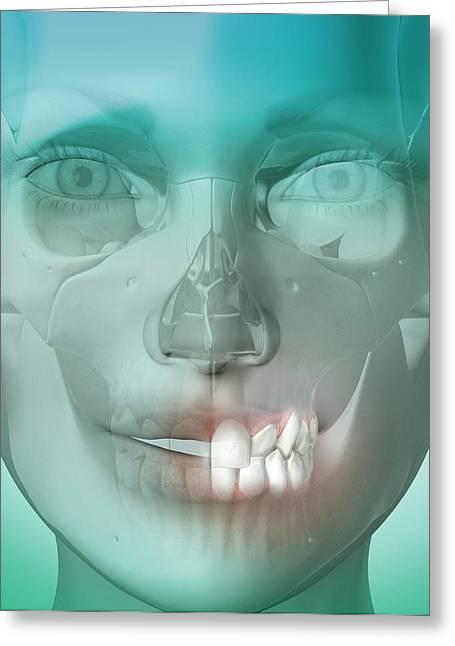 Dental Crossbite Greeting Card by Claus Lunau