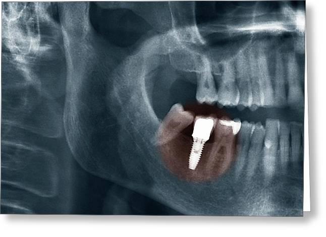Dental Implant Greeting Card
