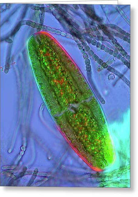 Desmid And Cyanobacteria Greeting Card