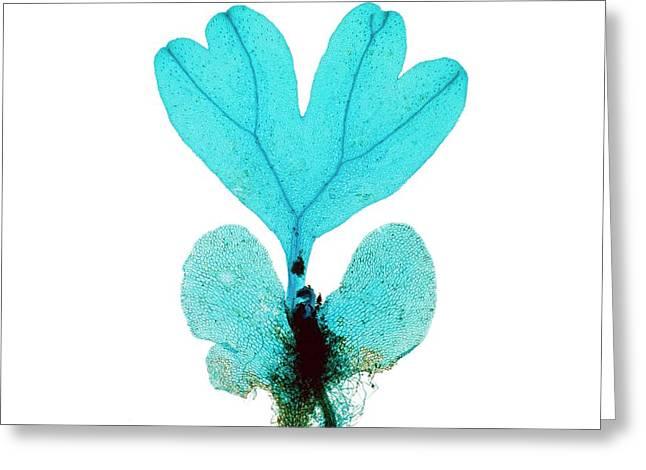 Developing Fern Prothallus Greeting Card