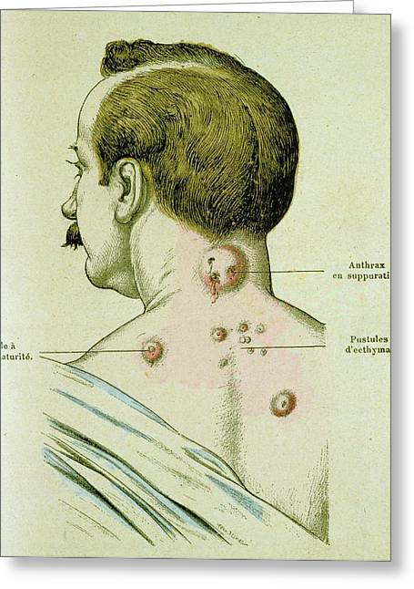 Development Of Pustules In Anthrax Greeting Card by Universal History Archive/uig