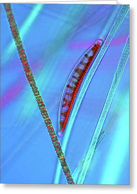 Diatom On Cyanobacteria Greeting Card