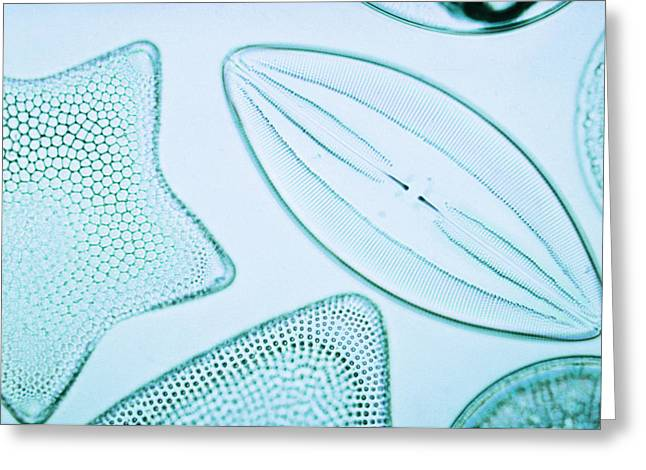 Diatoms Greeting Card by Biology Media