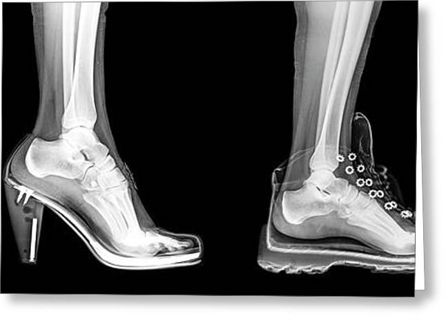Different Shoes X-ray Greeting Card