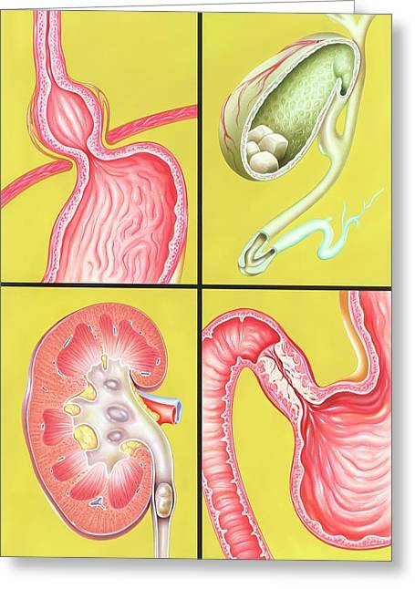 Digestive-excretory Disorders Greeting Card by John Bavosi
