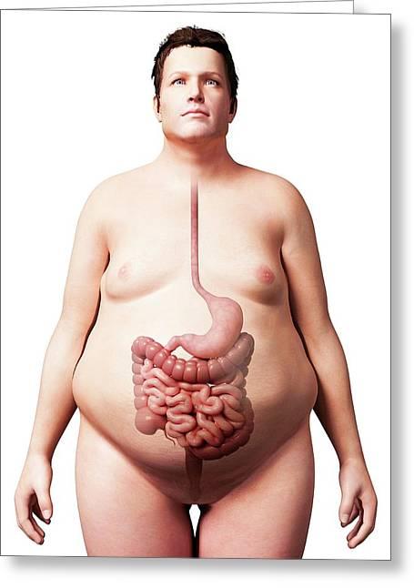 Digestive System Of Obese Man Greeting Card by Sebastian Kaulitzki