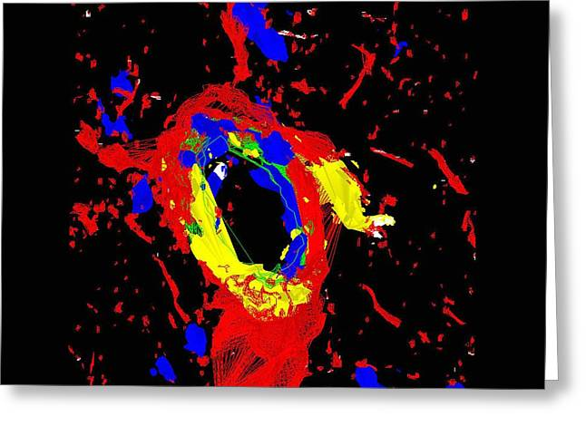 Dilated Arteriole Greeting Card by R. Bick, B. Poindexter, Ut Medical School