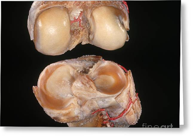 Disarticulated Knee Joint Greeting Card by VideoSurgery