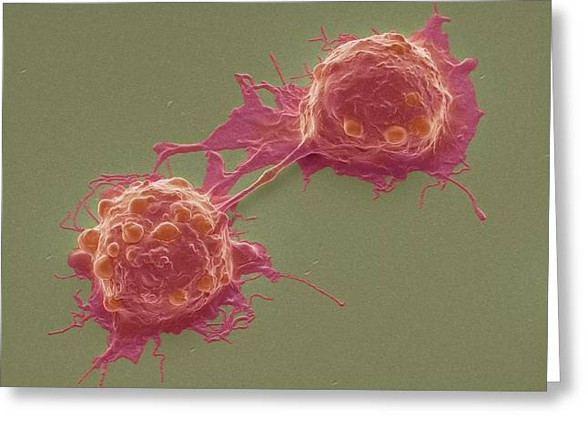 Dividing Colorectal Cancer Cells Greeting Card by Steve Gschmeissner