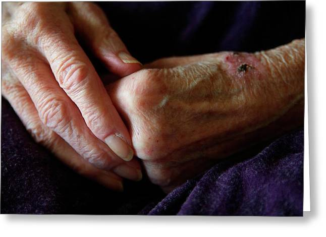 Elderly Woman's Hands Greeting Card by Hannah Gal