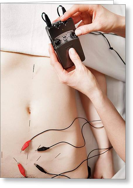 Electroacupuncture Fertility Treatment Greeting Card