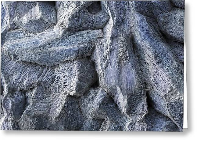 Electroetched Zinc Anode (sem) Greeting Card by Science Photo Library