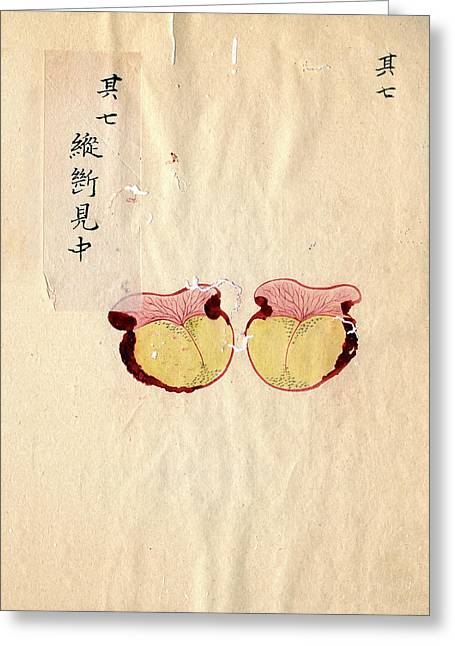Excised Breast Cancer Greeting Card by National Library Of Medicine