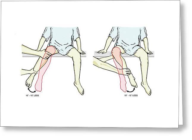 External-internal Hip Rotation Exam Greeting Card by John T. Alesi