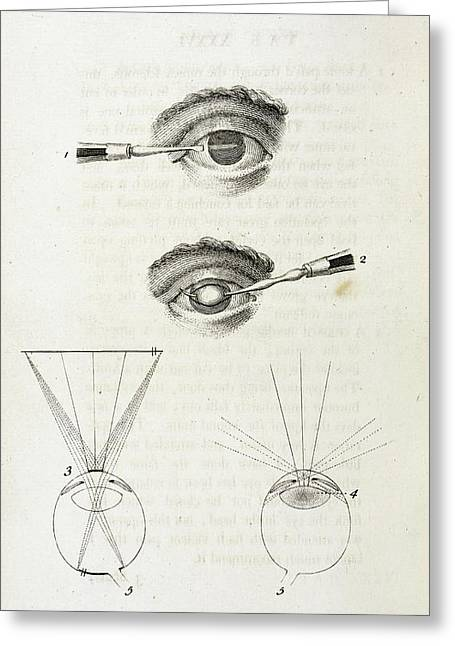Eye Surgery Greeting Card by British Library